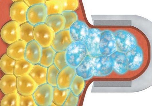 CoolSculpting® usa un enfriamiento controlado para atacar y cristalizar las células grasas