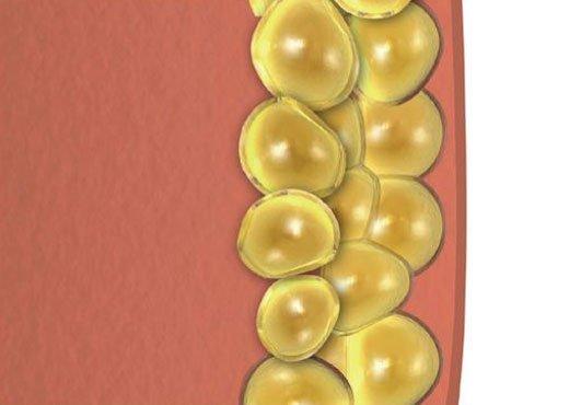 las células grasas restantes se condensan, lo que reduce la capa de grasa