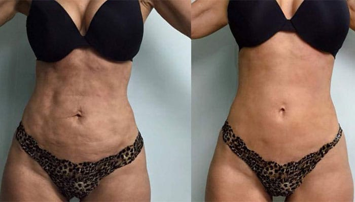 carmen sarmiento tightsculpting antes y despues 05