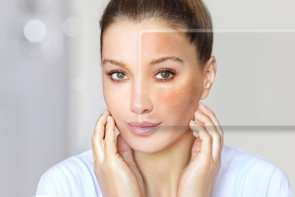 El Melasma es producido por las hormonas femeninas.