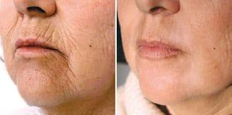 carmen sarmiento skin lifting laser 4d antes y despues 1