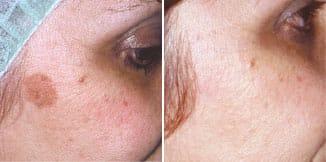 carmen sarmiento skin lifting laser 4d antes y despues 2