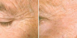 carmen sarmiento skin lifting laser 4d antes y despues 3