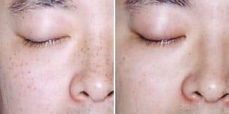 carmen sarmiento skin lifting laser 4d antes y despues 4