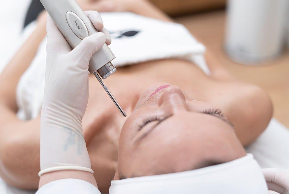 Skin Lifting 4D para tratar el envejecimiento prematuro de la piel en Carmen Sarmiento