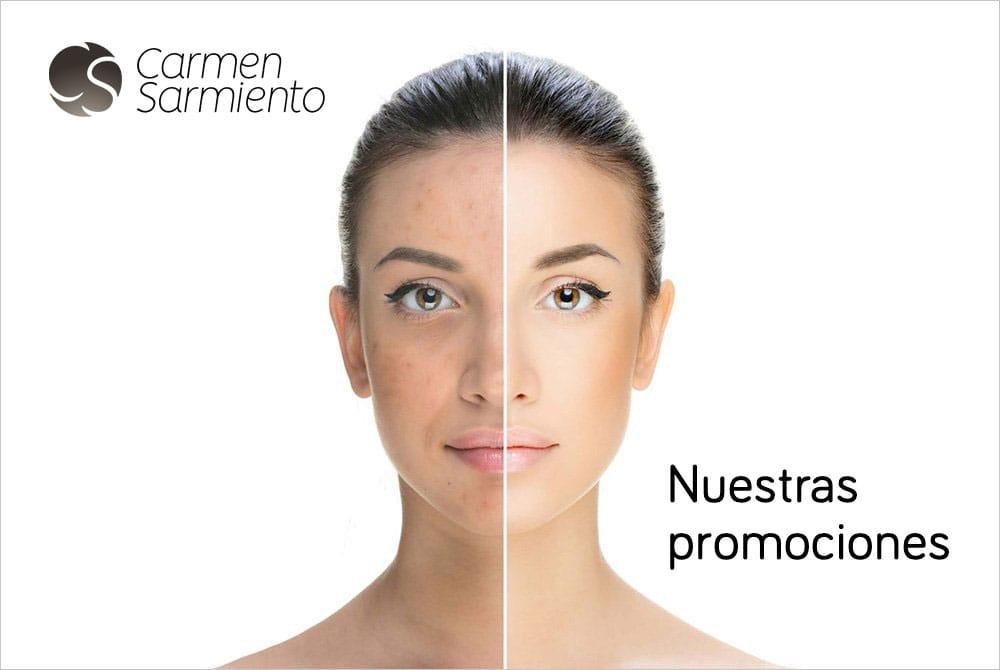 Nuestros tratamientos a precios muy especiales. Nuestras promociones para este otoño. Recupera tu belleza.