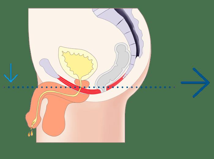 EMSELLA ® en Sevilla para poner fin a la incontinencia